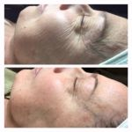Crio-Carboxiterapia facial Coolifting
